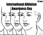 Den na mezinárodní Albinismus